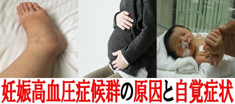 妊娠高血圧症候群になる原因と自覚症状