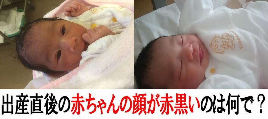 出産直後の赤ちゃんの顔色が赤黒い